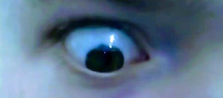 Mr Ruffle eye ball